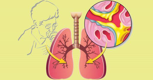 Un remedio «de la abuela» contra la tos. ¡Necesitarás solo un ingrediente!