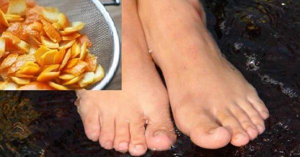 Ella colocó la cáscara de mandarina entre los dedos de pie… ¡Le salió un remedio increíblemente eficaz!