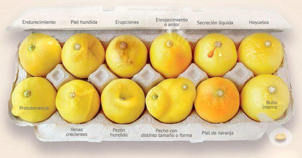«Conoce tus limones»: Una campaña en la lucha contra el cáncer de mama que podría salvar tu vida…