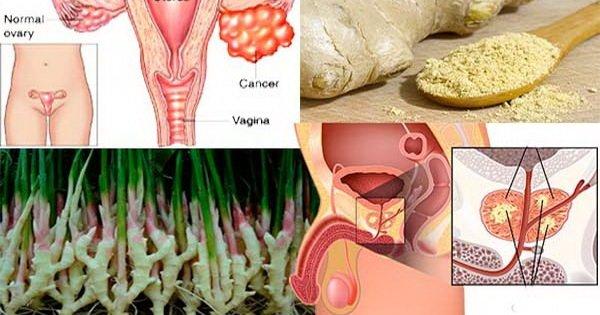 Jengibre: el arma perfecta contra el cáncer de colon, ovarios y próstata. ¡Mejor que la Quimioterapia!