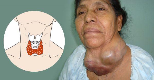 Una cura alternativa para la tiroides: ¡Secreto que los médicos se empeñan en esconder!