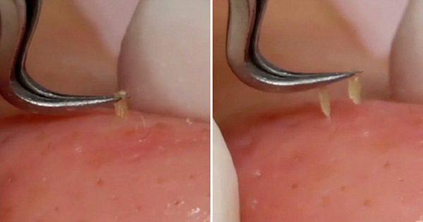 ¡Limpiar los poros de la cara ahora es más fácil que nunca! La piel radiante y bella en 7 días…