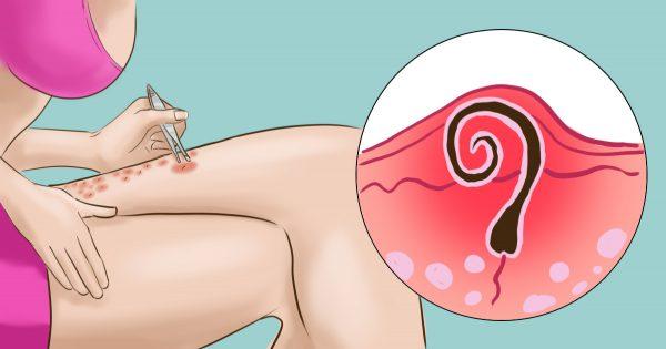 SOS de la depilación: 6 excelentes recomendaciones para eliminar los vellos encarnados.