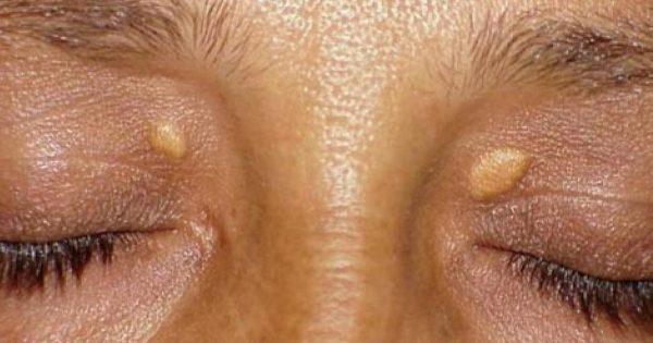 ¡Ya no más fibromas y las verrugas! Este es el camino más corto a la piel sana y hermosa...