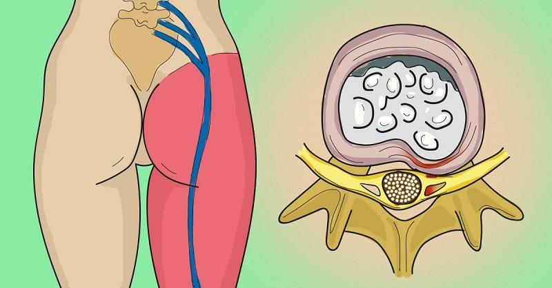 Cómo eliminar el dolor en el nervio ciático