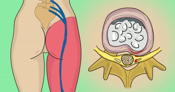 La crisis del nervio ciático: Este sencillo ejercicio te eliminará el malestar en un abrir y cerrar de ojos…