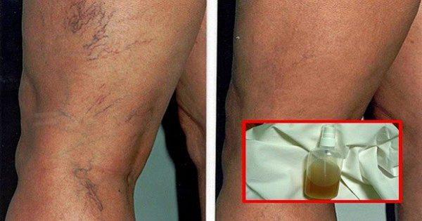 Bálsamo a lo natural: ¡La mejor manera de quitar la malla vascular y restaurar la belleza de la piel!