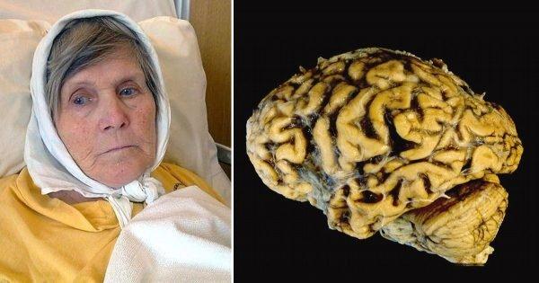 ¡La enfermedad de Alzheimer se puede prevenir! Sólo 1 ejercicio por día, y tu memoria estará al 100%…