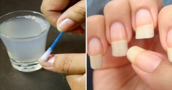 Para que tus uñas crezcan rápido y nunca se rompan: ¡Un remedio sencillo de 4 ingredientes!