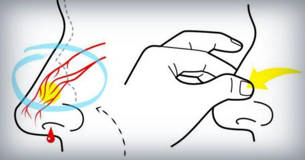 Consejo del día: El método correcto para detener el sangrado de la nariz.