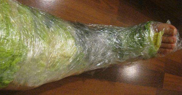 Eso es lo que sucede, si aplicas las hojas de col a tu pierna tan sólo por 1 hora!