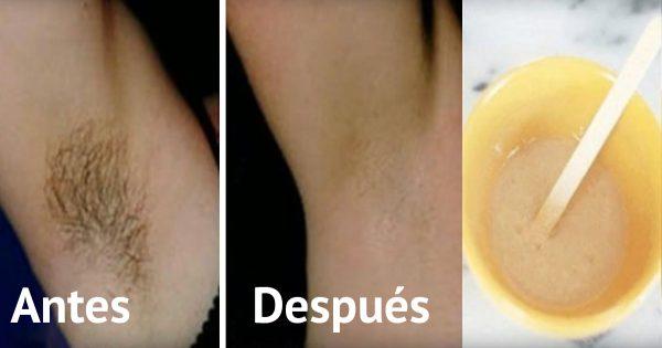 ¡Elimina el pelo no deseado de las axilas en sólo 2 minutos y sin irritación!