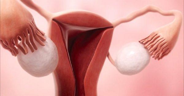 Dieta cruda vs. Menstruación. ¡Chicas, esta podría ser la receta ideal contra los dolores menstruales!
