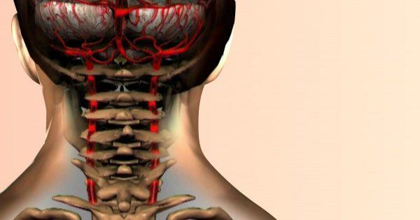 El 90% de la población mundial sufre de osteocondrosis cervical. No la subestimes…