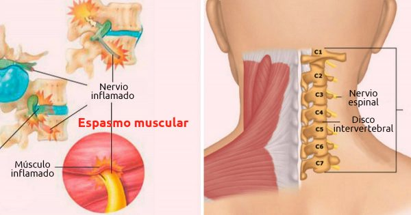 Aprende a relajar las contracciones musculares del cuello y la espalda: ¡Di adiós a los calambres