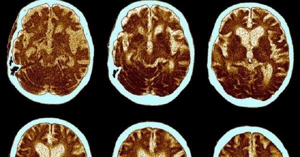 ¡La enfermedad de Alzheimer puede ser prevenida! Con estos ejercicios, tu memoria estará a salvo…