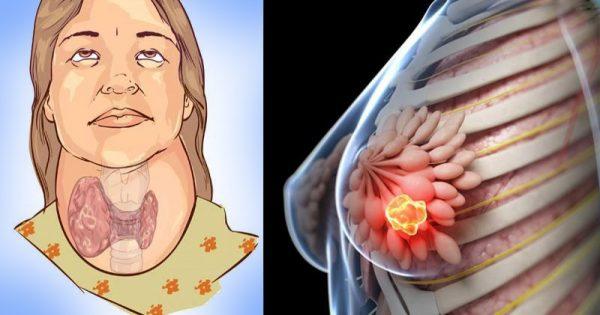 Siempre pensé que era una bebida útil. ¡Resulta que afecta la glándula tiroides y más!