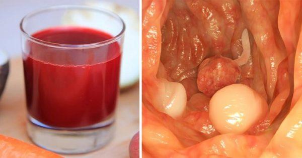 ¡Bebida de médico austríaco Rudolf Breuss ha sanado a unos 45 000 pacientes con cáncer!