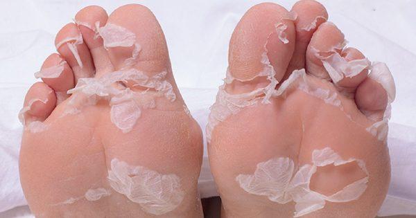 ¿Se te agrieta la piel de los pies? ¡Este método es mejor que la piedra pómez y que los pulsos eléctricos!