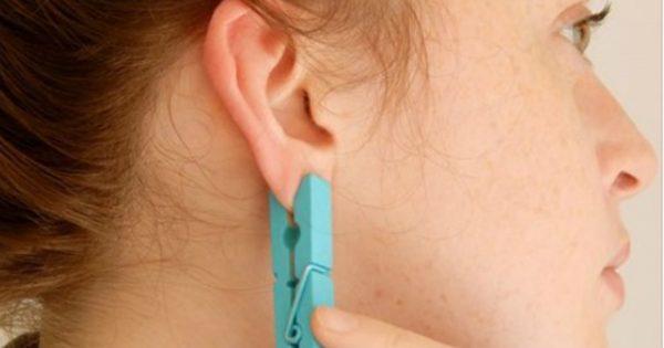 Ella fijó una pinza sobre unos puntos en la oreja. ¡Te sorprenderás cuando conozcas las razones!