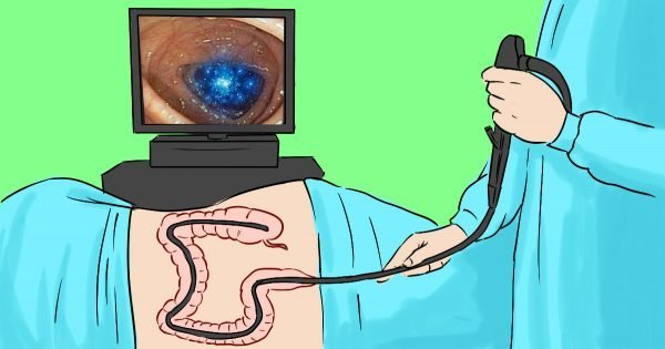 Si el doctor insiste en una colonoscopía, dígale que… ¡Desacreditamos el mito!