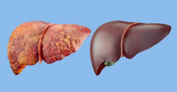 Productos para limpiar el hígado graso. ¡Muy efectivo!