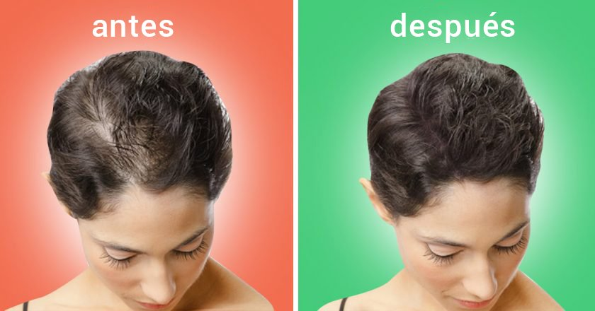 La caída de los cabello y el picor del cuero cabelludo que esto