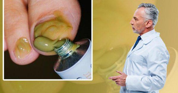 ¡Conozcan la solución perfecta para combatir los hongos en las uñas!