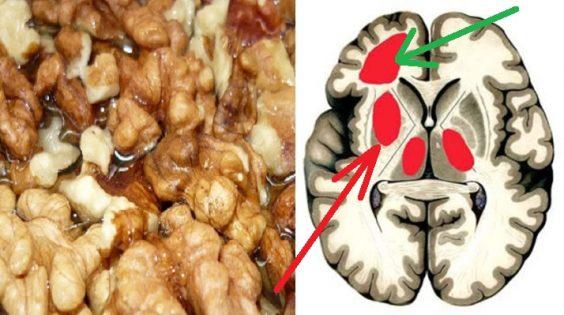 5 remedios naturales para eliminar la placa de los vasos sanguíneos… ¡Receta para una salud de oro!