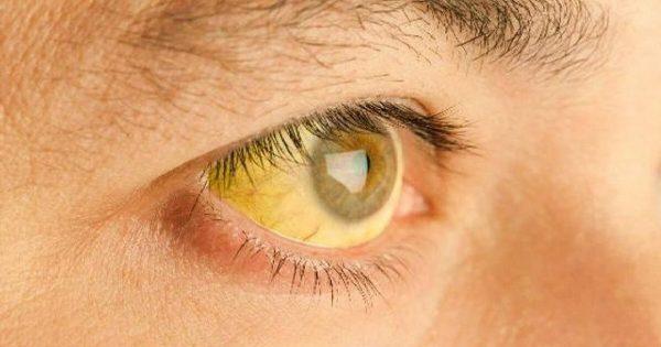 ¿Sabías que el estado de la salud se puede conocer a través de los ojos?  ¡Presta atención a estas 8 señales!