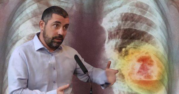 Este médico israelí te dirá cómo atajar el cáncer en una etapa temprana. ¡Recomendaciones que salvan la vida!