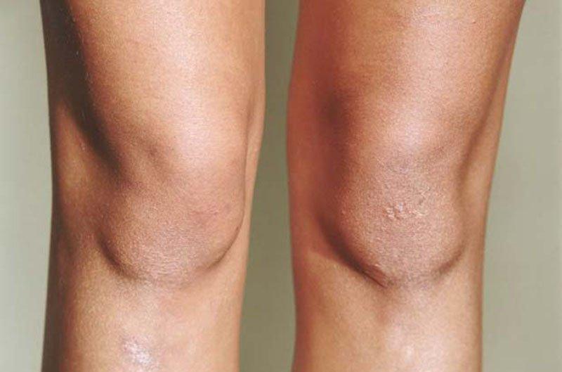 Resultado de imagen de suavizar rodillas y codos