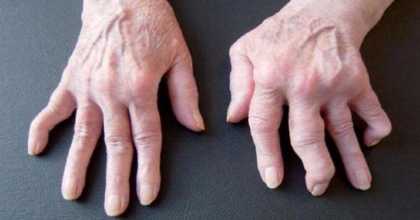 Este producto milagroso ayudó a erradicar el dolor de la artritis de una vez por todas. ¡Me siento aliviado!